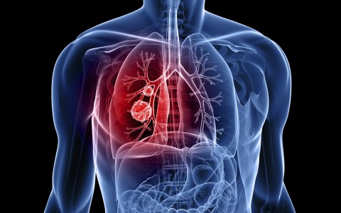 Nivolumabe quadruplica a sobrevida em cinco anos no câncer de pulmão de 4% para 16%