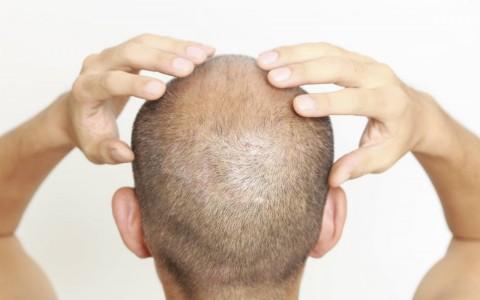 Resfriamento do couro cabeludo para prevenir a queda de cabelos durante a quimioterapia revela-se promissor