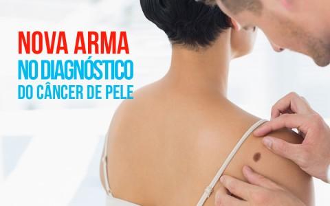 Nova arma no diagnóstico do câncer de pele